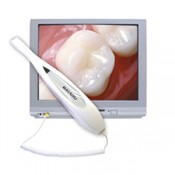 Intra-Oral Camera (0)