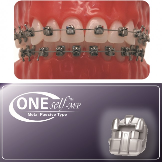 Speed Dental One Self-MP (Self Ligation Metal Passive Bracket)