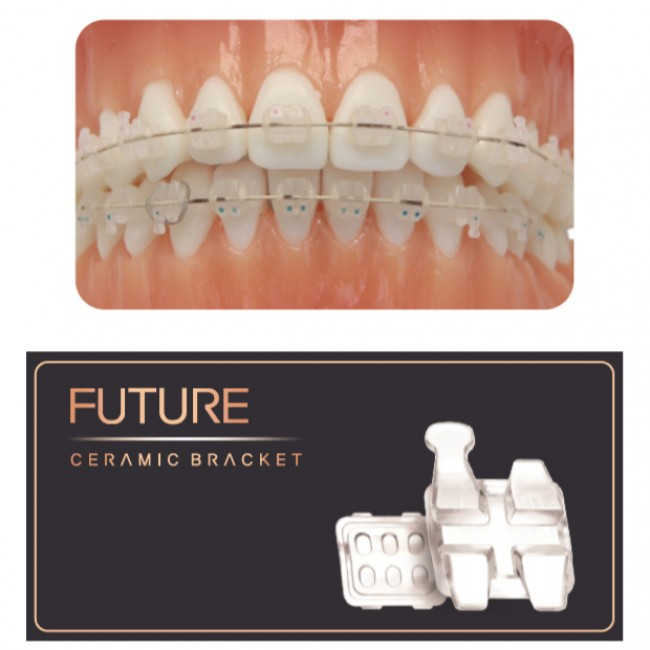 Speed Dental Future Ceramic Bracket (Roth & MBT) (122.123)