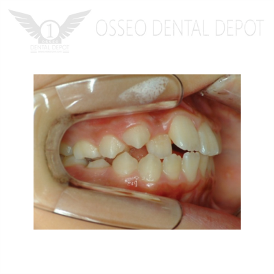 Speed Dental Side Wider 1 pc (SD600-602/3)
